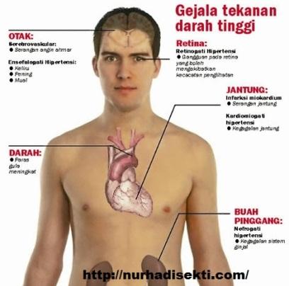 hipertensi-gejala